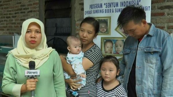 MNC Peduli-RS Pertamina Bintang Amin Kunjungi Pasien Bibir Sumbing