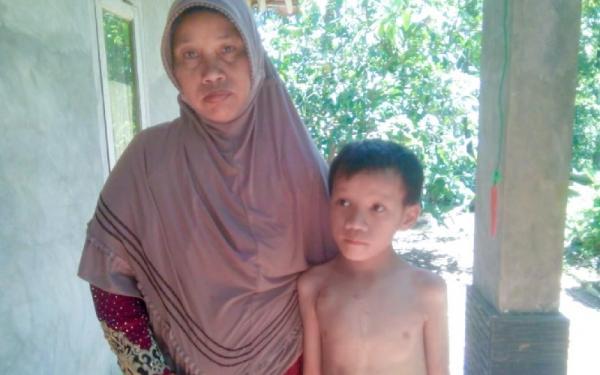 Miris, Anak Usia 11 Tahun di Pangandaran Hidup dengan Bocor Jantung