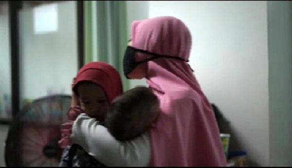 RSHS Bandung Berhasil Pisahkan Bayi Kembar Siam Hasna dan Husna