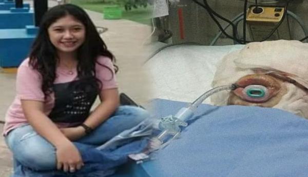 Viral Foto Cantik Indah Sebelum Dibakar Pacar, Netizen di Cianjur Heboh