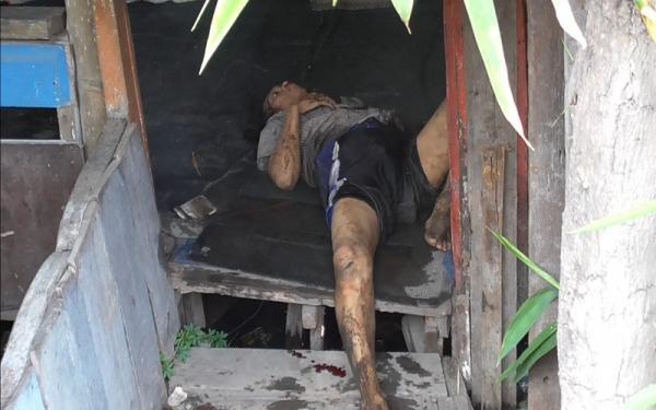 Seorang Pemuda di Medan Labuhan Luka-Luka Disenggol Kereta Api, Sempat 3 Jam Telantar