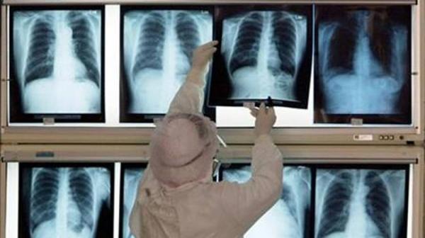 Dokter Spesialis Patologi Beri Penjelasan Bedanya Batuk karena Gejala Kanker Paru dengan Covid-19