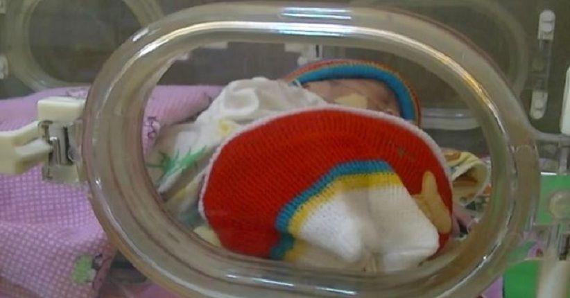 Bayi Kembar Siam Lengket Tak Punya Biaya untuk Dirujuk ke Surabaya