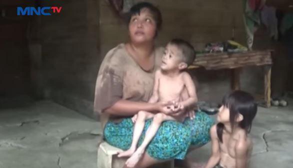 Sejak Pandemi, Kasus Balita Gizi Buruk di Bandung Meningkat
