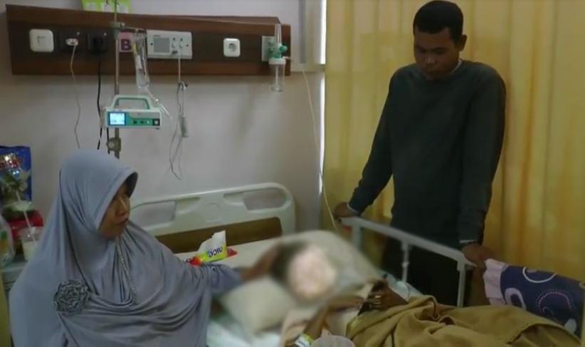 Kena Petasan, Wajah Bocah SD di Kampar Riau Luka Bakar Serius dan Dioperasi