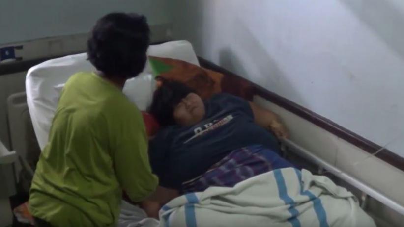 Obesitas hingga Tak Bisa Jalan, Yunita Gadis Asal Sidoarjo Jalani Perawatan RS