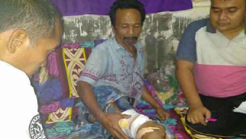 Lolos dari Maut, Pria di Madina Sumut Serang Balik Buaya yang Gigit Kakinya
