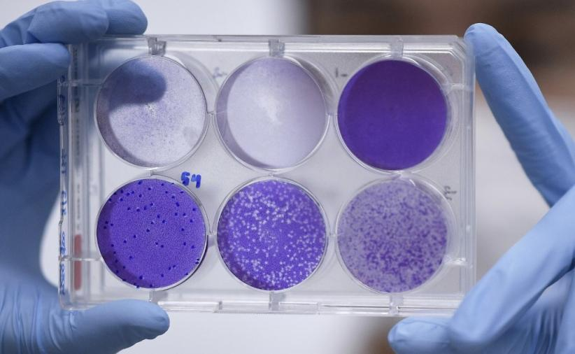 Berlawanan dengan Trump, Prancis Sebut Tak Ada Bukti Virus Corona dari Lab Wuhan