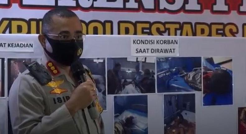 Aksi Sadis Geng Motor di Medan, Keroyok dan Lindas Korban hingga Koma 6 Hari