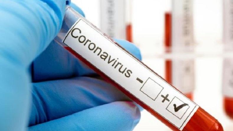 Update 24 Juli: Positif Covid-19 di Sulut Bertambah 42 Pasien, Total 2.162 Orang