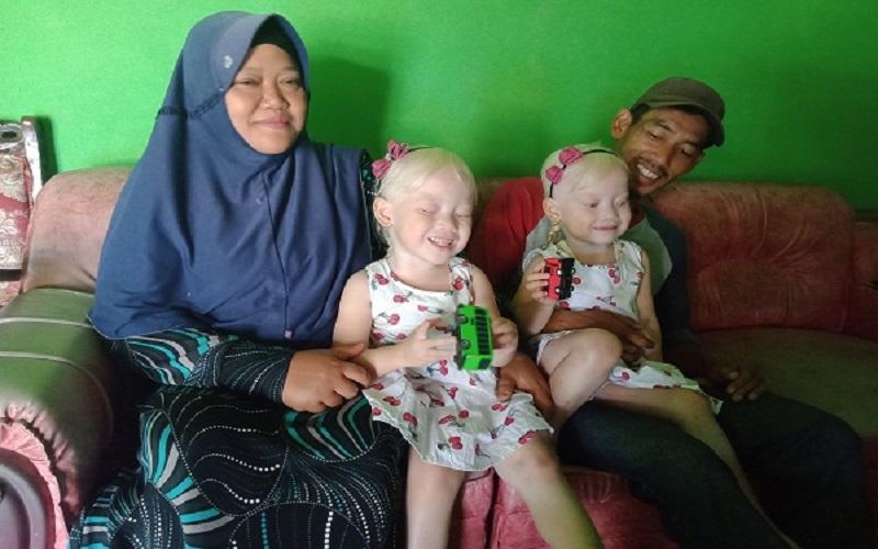 Anak Kembar Albino di Wonogiri Viral, Orang Tua Sempat Dikira Pembantu