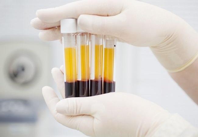 Bupati Bandung Barat Terapi Plasma agar Cepat Sembuh dari Covid-19