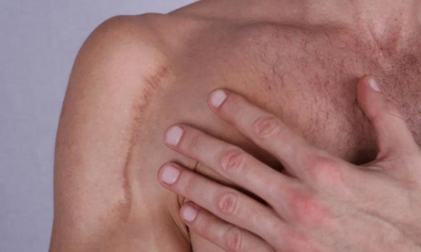 3 Cara Menghilangkan Bekas Luka di Kulit, Salah Satunya Pakai Bawang Merah