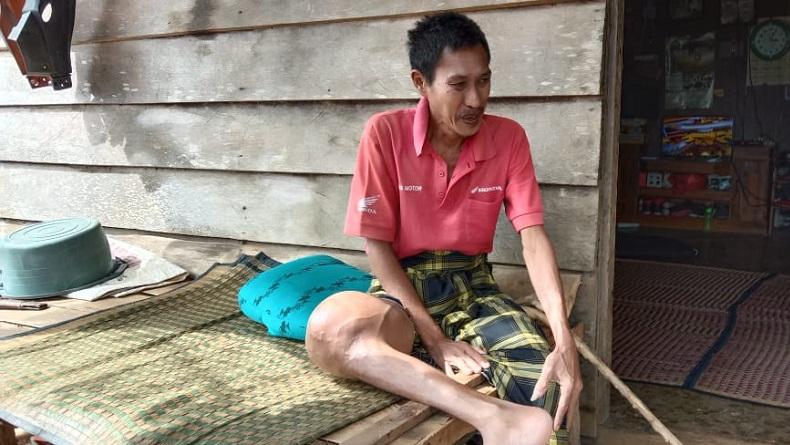 Punya Tumor di Kaki, Begini Cerita Pilu Petani Kopi di Pesisir Barat Lampung