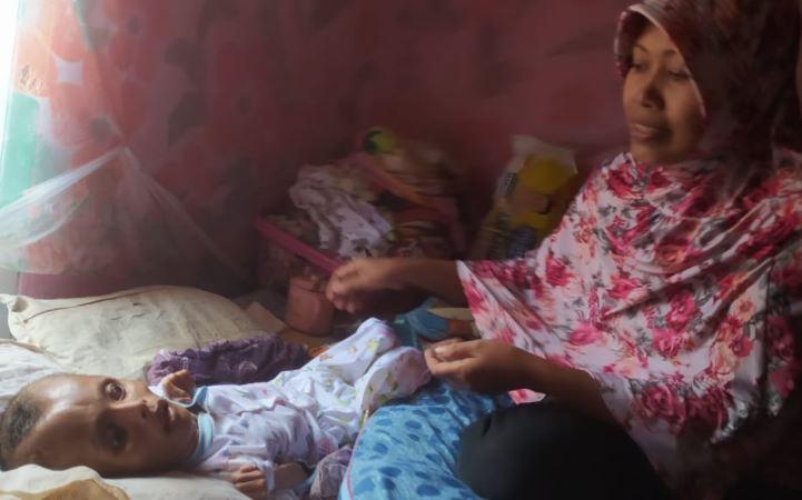 Tolong, Bocah 9 Tahun Penderita Hydrocephalus di Banjarnegara Butuh Bantuan