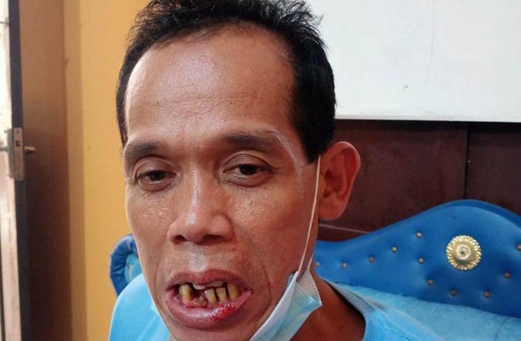 Cemburu Buta, Warga Kulonprogo Main Pukul Akibatkan 3 Gigi Korban Goyang
