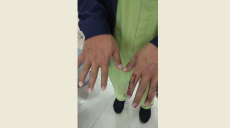 Keluarga Pasien Covid-19 Mengamuk di RSUD Ambarawa, 2 Perawat Terluka